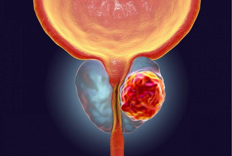عکس سرطان پروستات