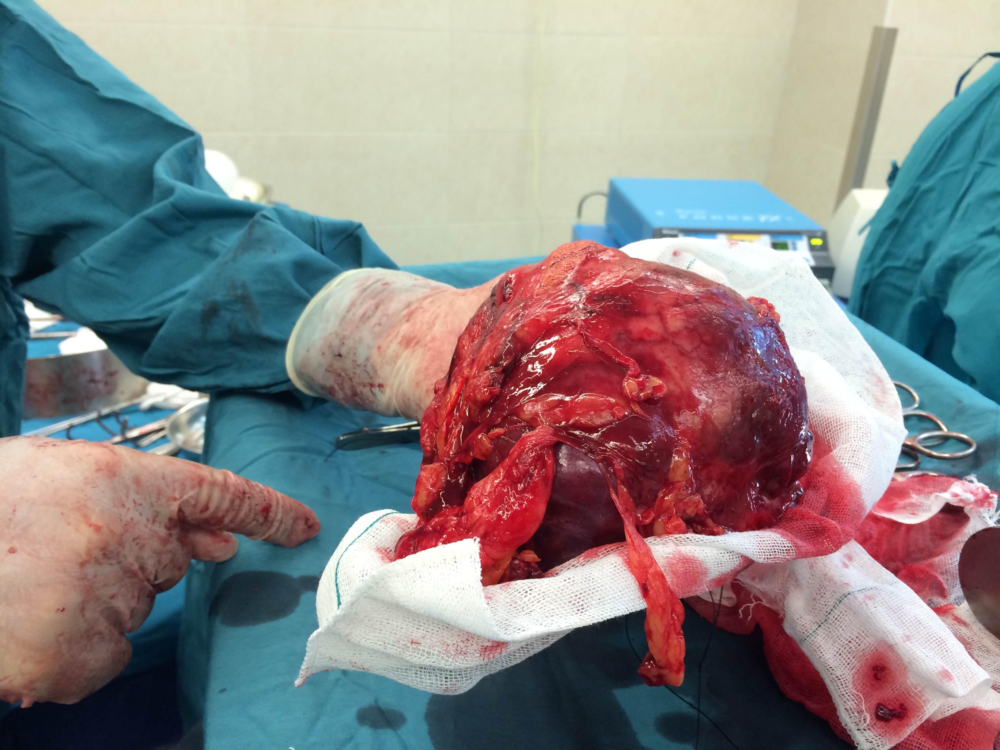 عمل جراحی سرطان کلیه