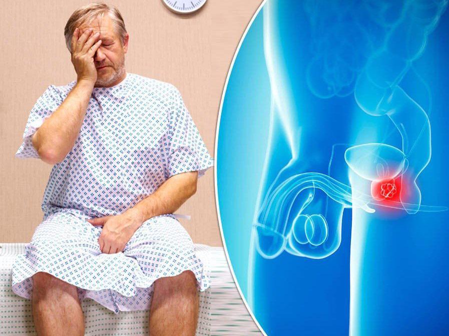 تشخیص سرطان پروستات