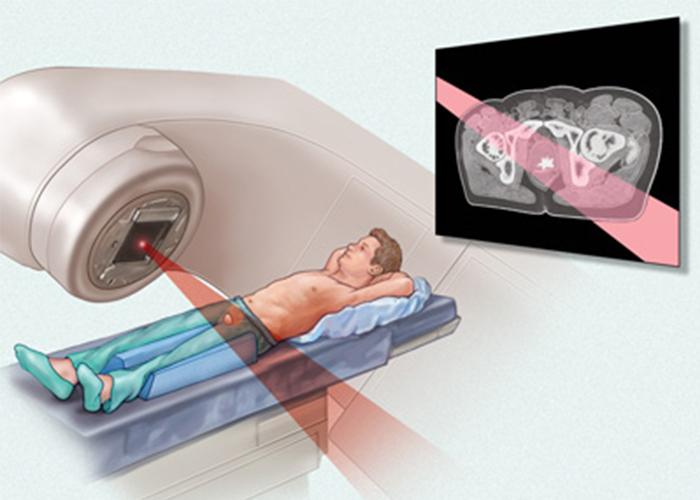 رادیوتراپی سرطان پروستات