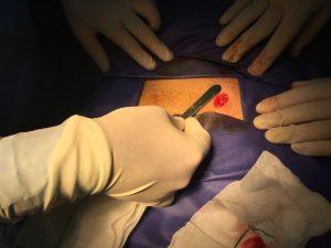 جراحی میکروسرجری