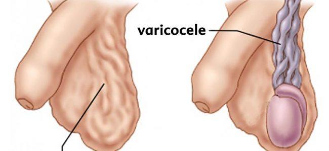جراحی درمان واریکوسل